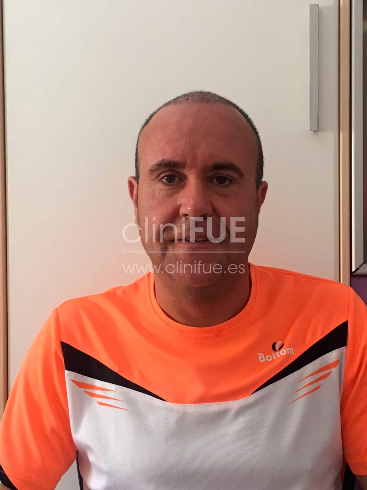 Cristobal 44 Almeria 15 días Trasplante capilar Turquia cliniFUE