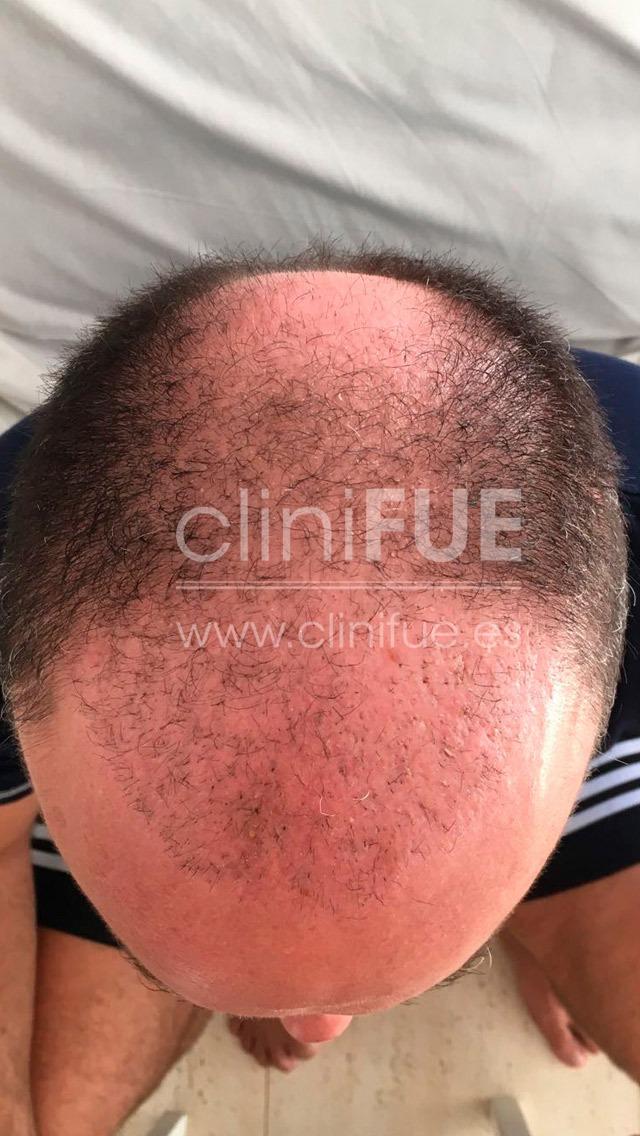 Cristobal 45 Almeria 1 mes Trasplante capilar Turquia cliniFUE