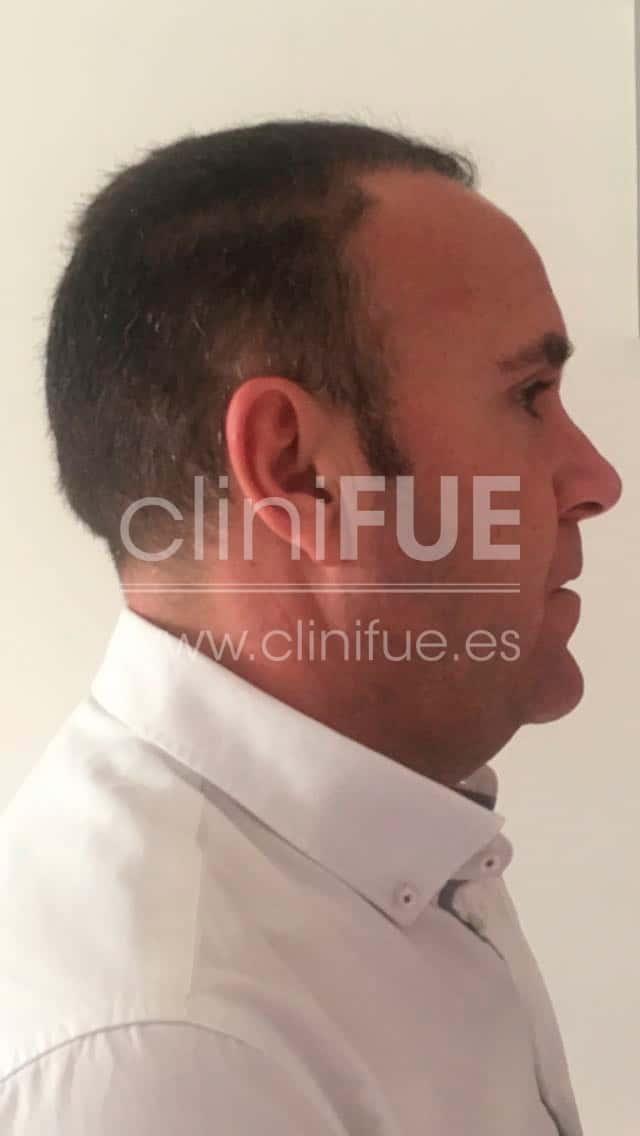 Cristobal 44 Almeria 6 meses Trasplante capilar Turquia cliniFUE