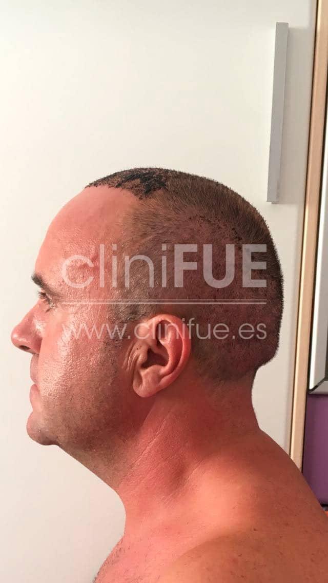 Cristobal 44 Almeria 7 días Trasplante capilar Turquia cliniFUE