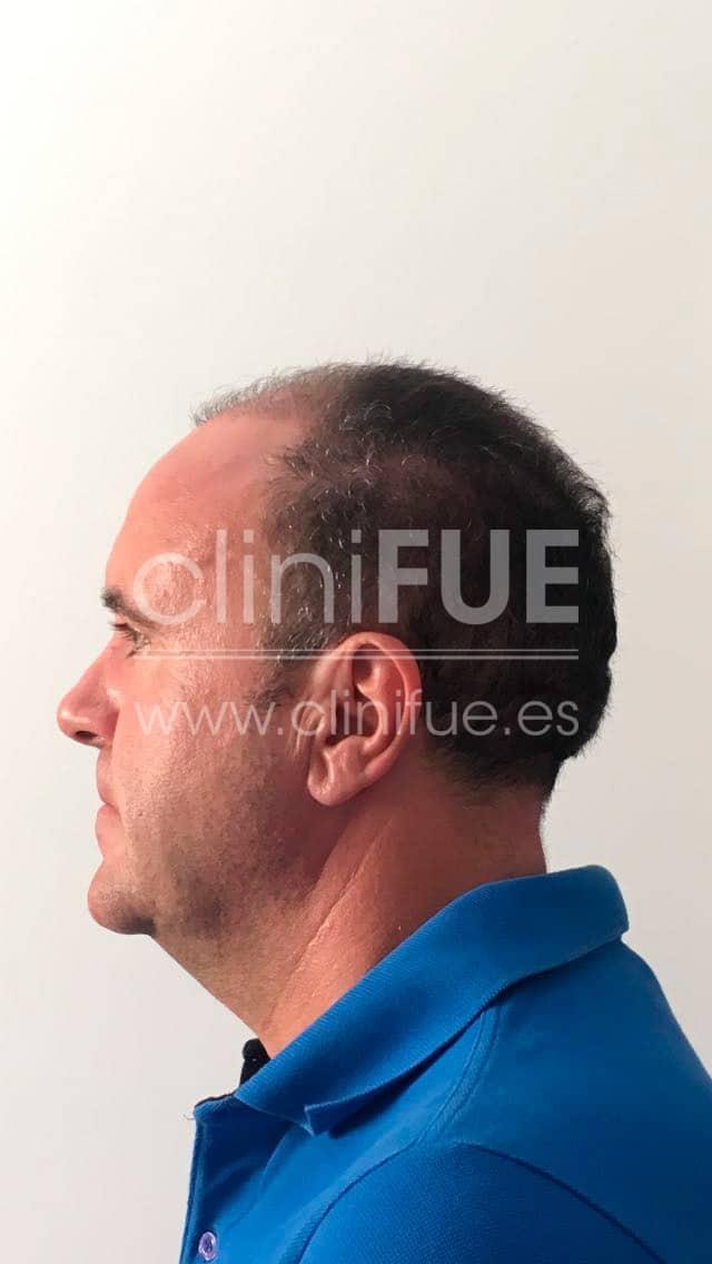 Cristobal 44 Almeria 3 meses Trasplante capilar Turquia cliniFUE