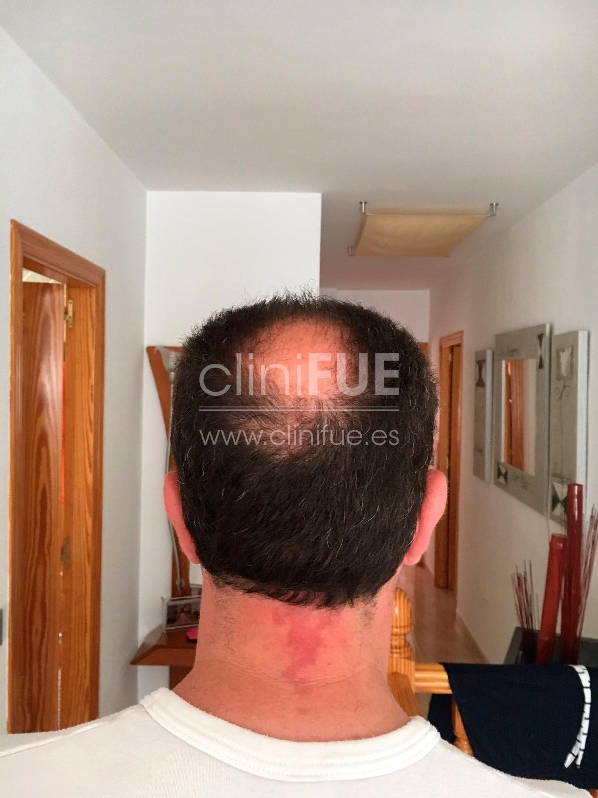 Cristobal 44 Almeria Antes Trasplante capilar Turquia cliniFUE