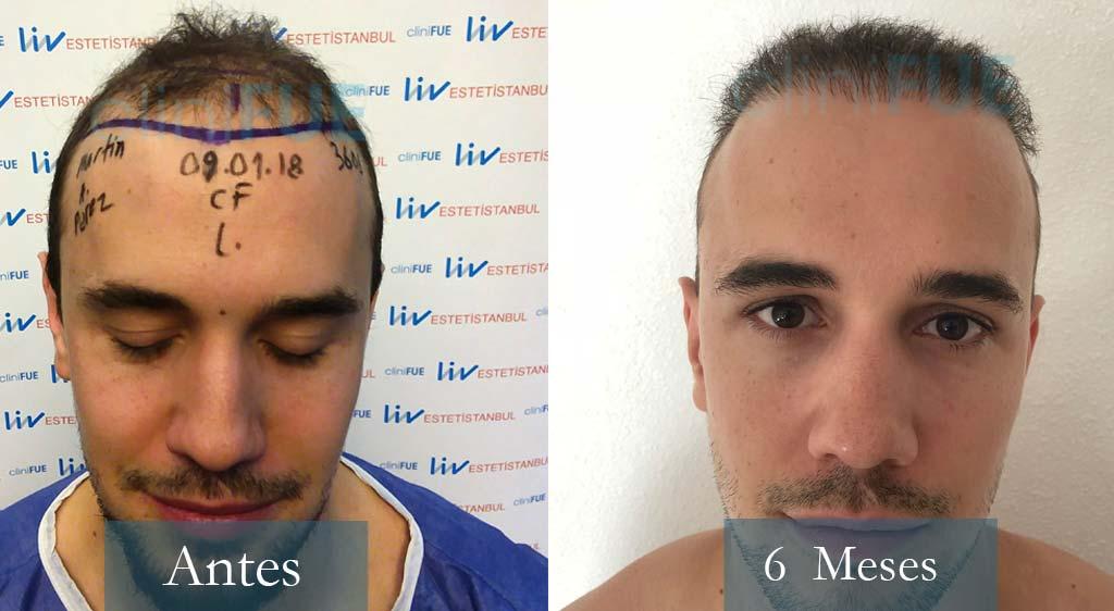 Martin 28 años Murcia 3600 UF injerto capilar