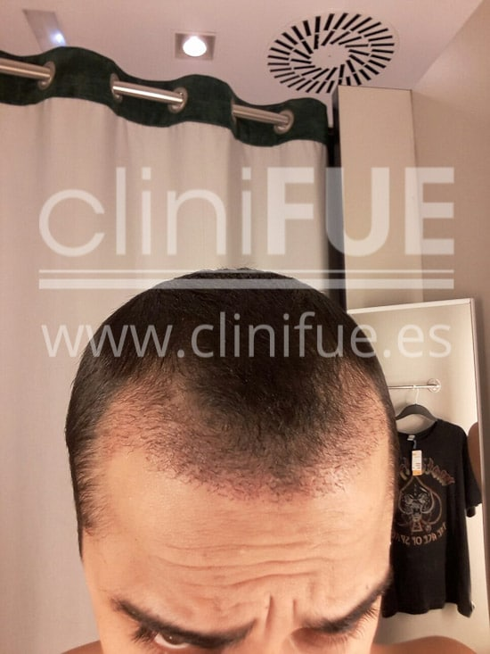 Alan 28 años Madrid trasplante capilar turquia 1 mes