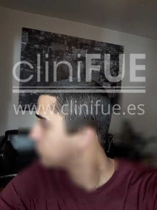 Alan 28 años Madrid trasplante capilar turquia 14 meses