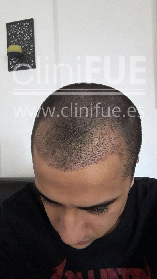 Alan 28 años Madrid trasplante capilar turquia 15 dias
