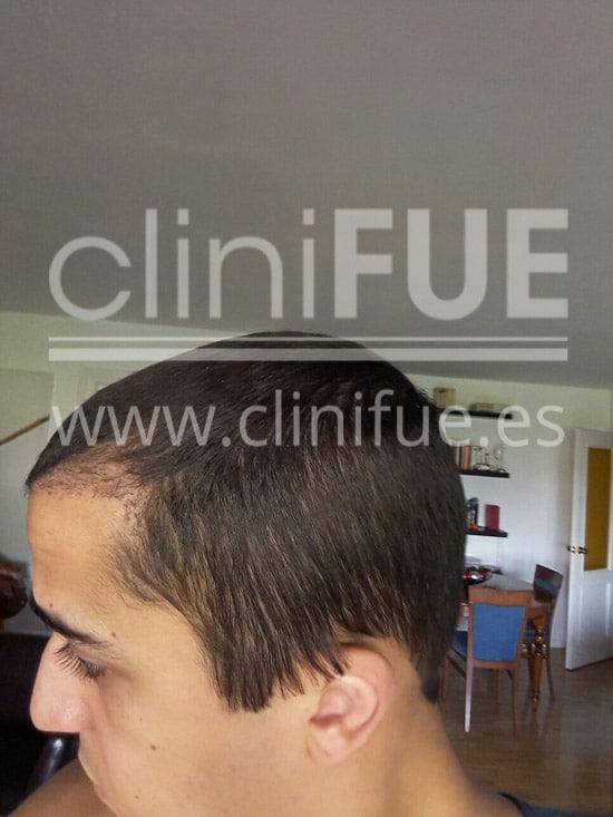 Alan 28 años Madrid trasplante capilar turquia 3 meses