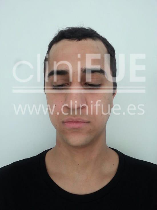 Alan 28 años Madrid trasplante capilar turquia Antes