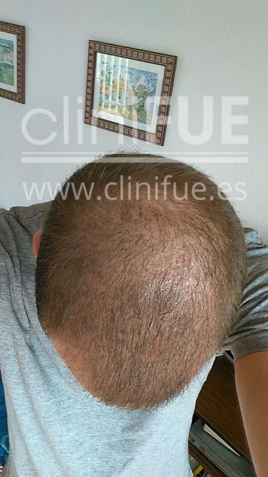 Alberto 31 años Madrid trasplante capilar turquia 1 mes
