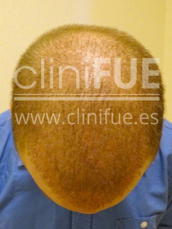 Alberto 31 años Madrid trasplante capilar turquia 15 dias