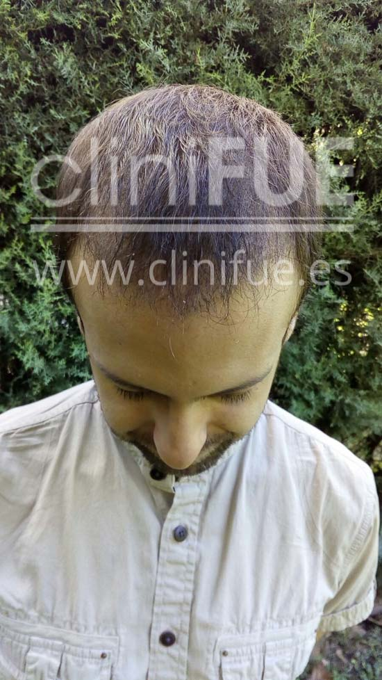 Alberto 31 años Madrid trasplante capilar turquia 3 meses