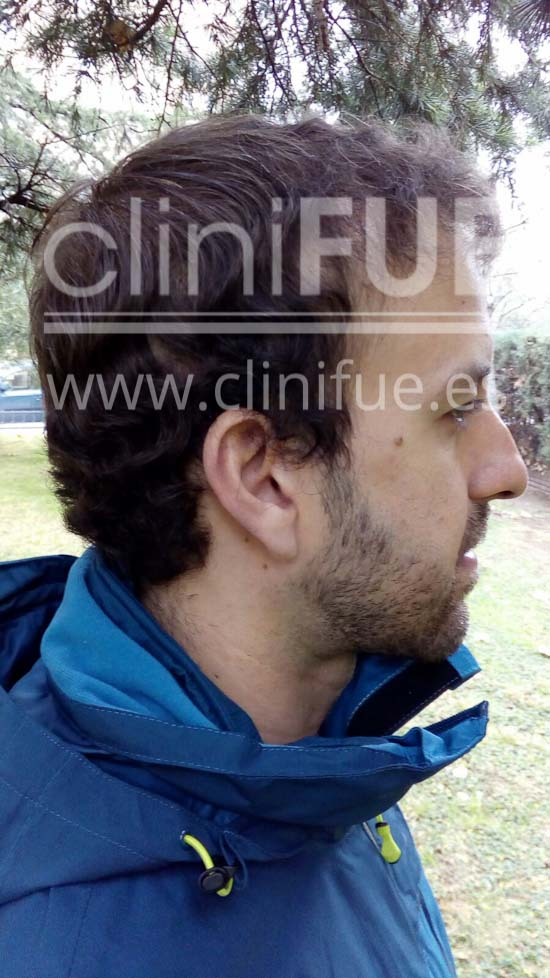 Alberto 31 años Madrid trasplante capilar turquia 6 meses