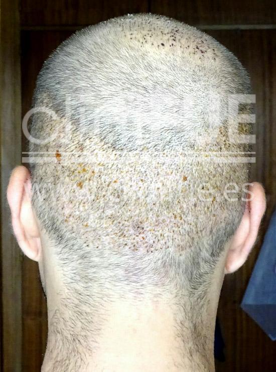 Alberto 31 años Madrid trasplante capilar turquia 7 dias