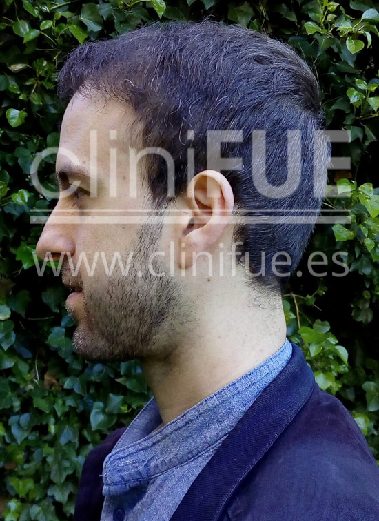 Alberto 31 años Madrid trasplante capilar turquia 9 meses