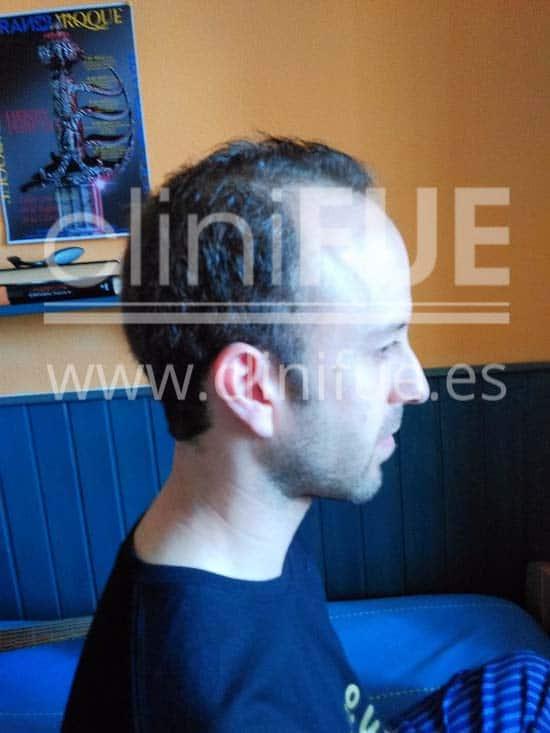 Alberto 31 años Madrid trasplante capilar turquia Antes
