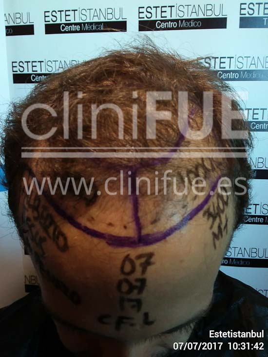 Alberto 31 años Madrid trasplante capilar turquia Dia Operacion