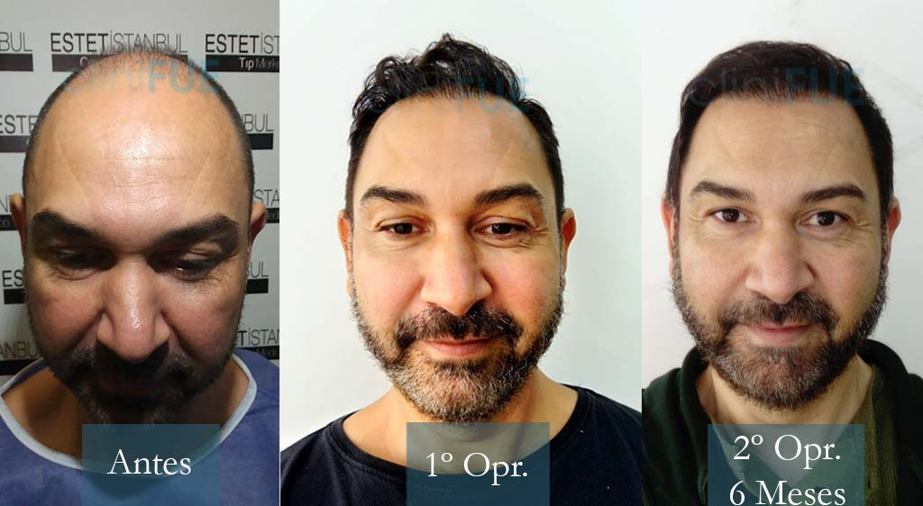 Antonio 43 años Murcia 3600 + 2700 UF injerto capilar