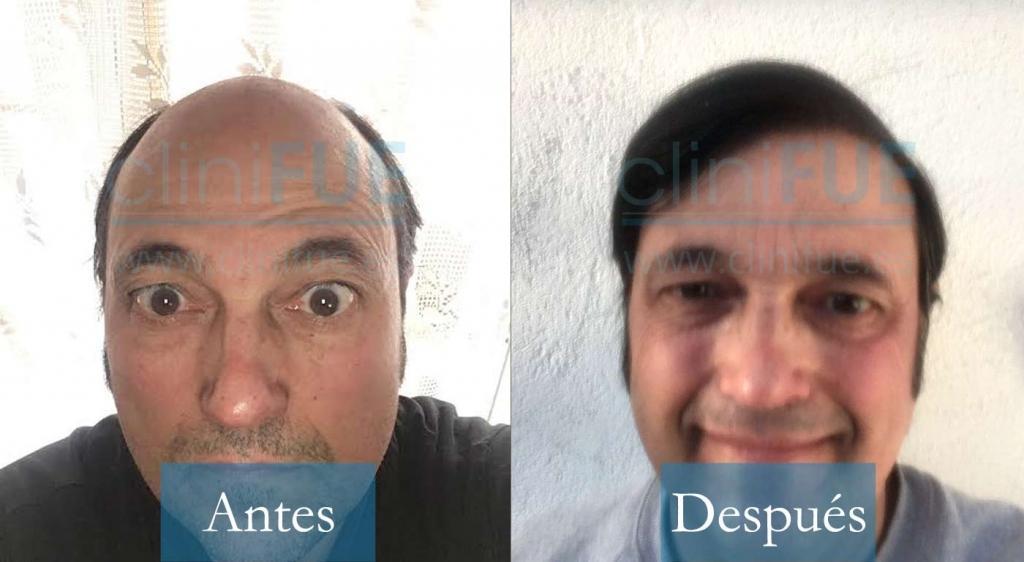 Carlos Alonso 56 Madrid_ antes y despues trasplante capilar cliniFUE