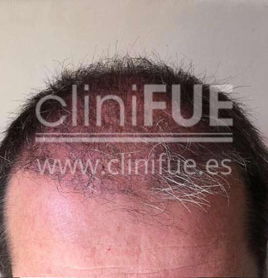 Cristobal 46 Bilbao injerto capilar turquia 3 meses