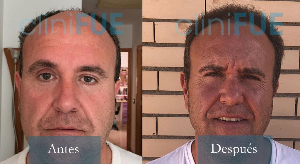 Cristobal 45 Almeria 4000UF trasplante de pelo