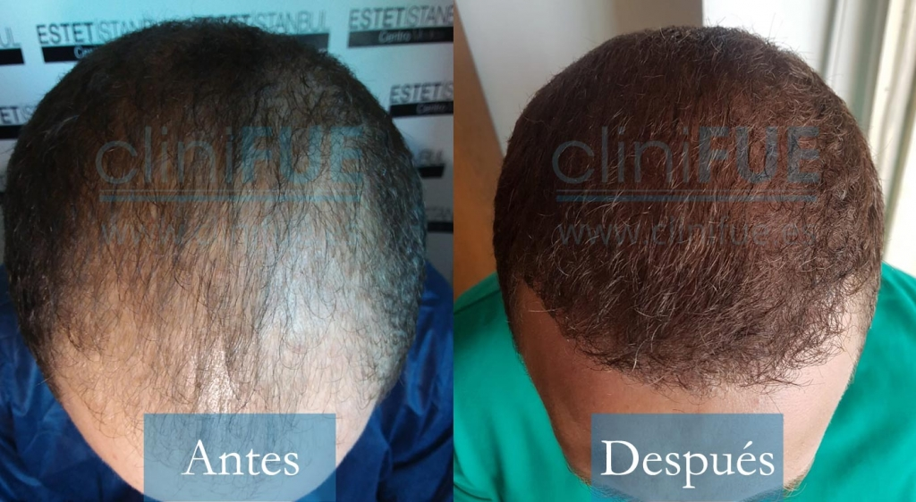 David 32 Madrid_ antes y despues trasplante capilar cliniFUE