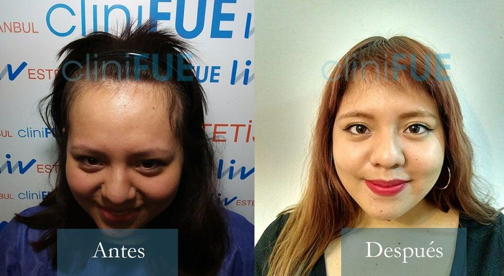 Diandra 22 Barcelona trasplante capilar femenino Antes y Despues