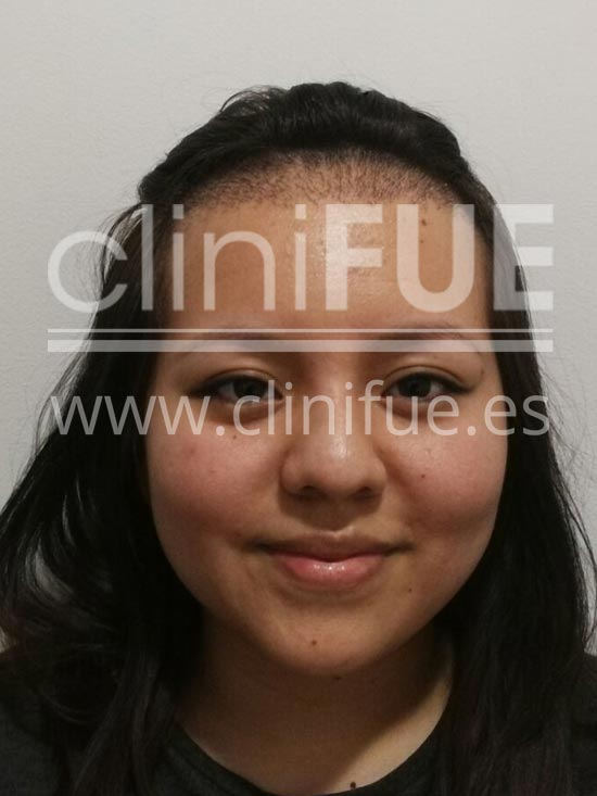 Diandra 22 Barcelona trasplante capilar femenino 15 dias