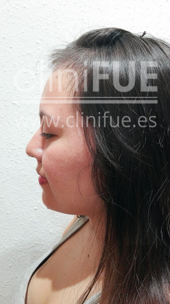 Diandra 22 Barcelona trasplante capilar femenino 2 meses