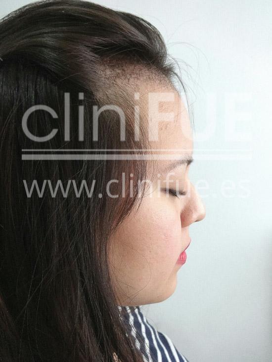 Diandra 22 Barcelona trasplante capilar femenino 1 mes