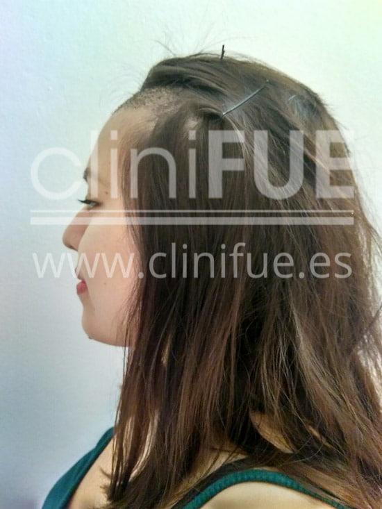 Diandra 22 Barcelona trasplante capilar femenino 7 dias