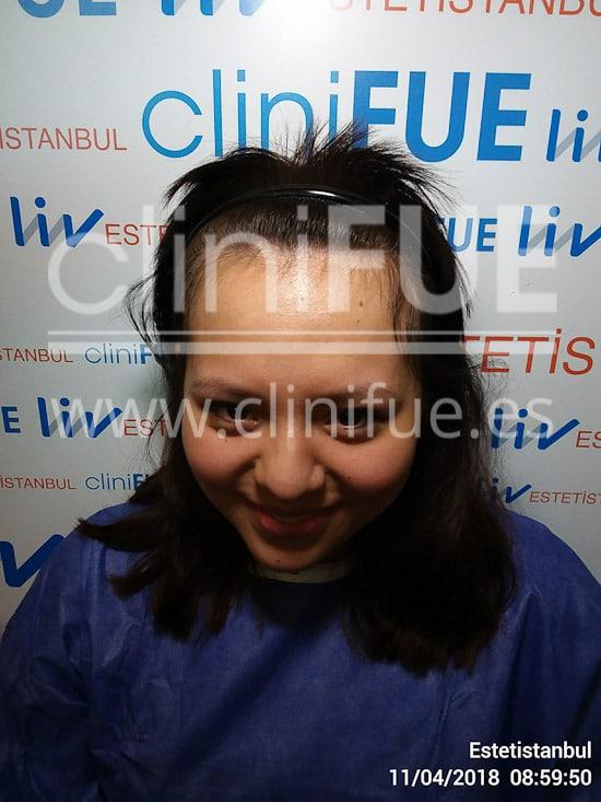 Diandra 22 Barcelona injerto capilar femenino cliniFUE Antes