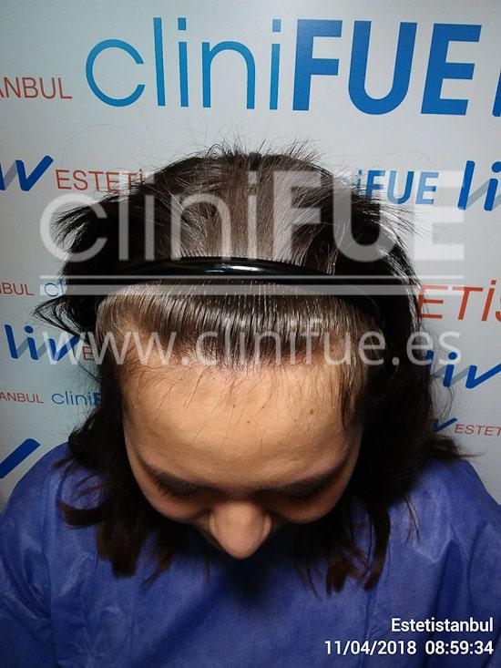 Diandra 22 Barcelona trasplante capilar femenino Antes