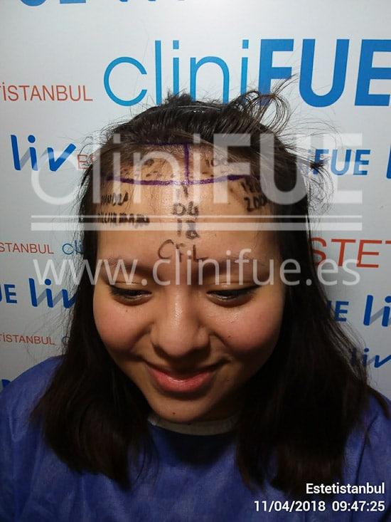 Diandra 22 Barcelona trasplante capilar femenino Dia Operacion