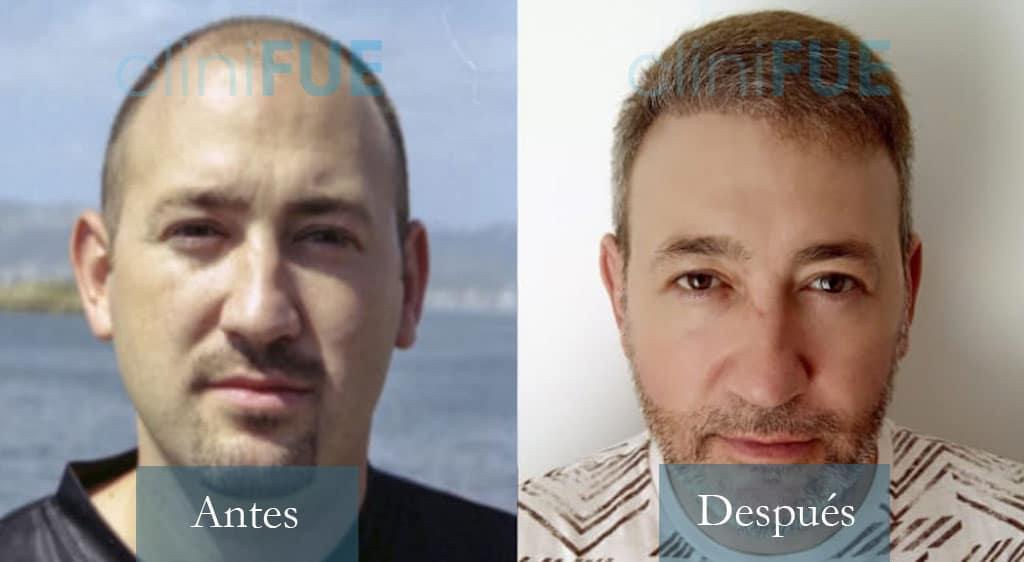 Chema 46 años Murcia 3600 UF injerto capilar