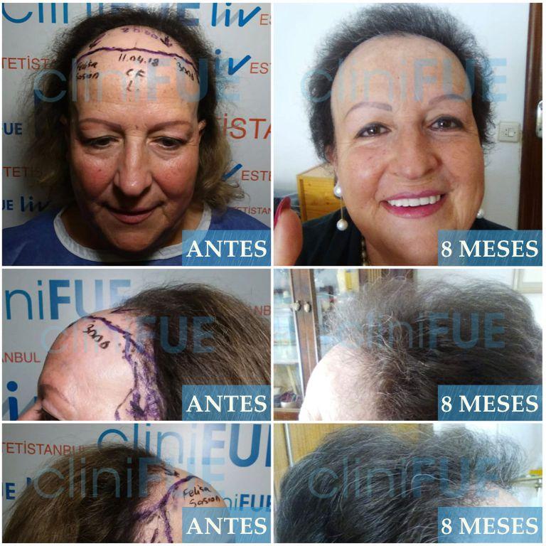 [Imagen: Felisa-Cantabria-trasplante-de-pelo-8-meses-1.jpg]