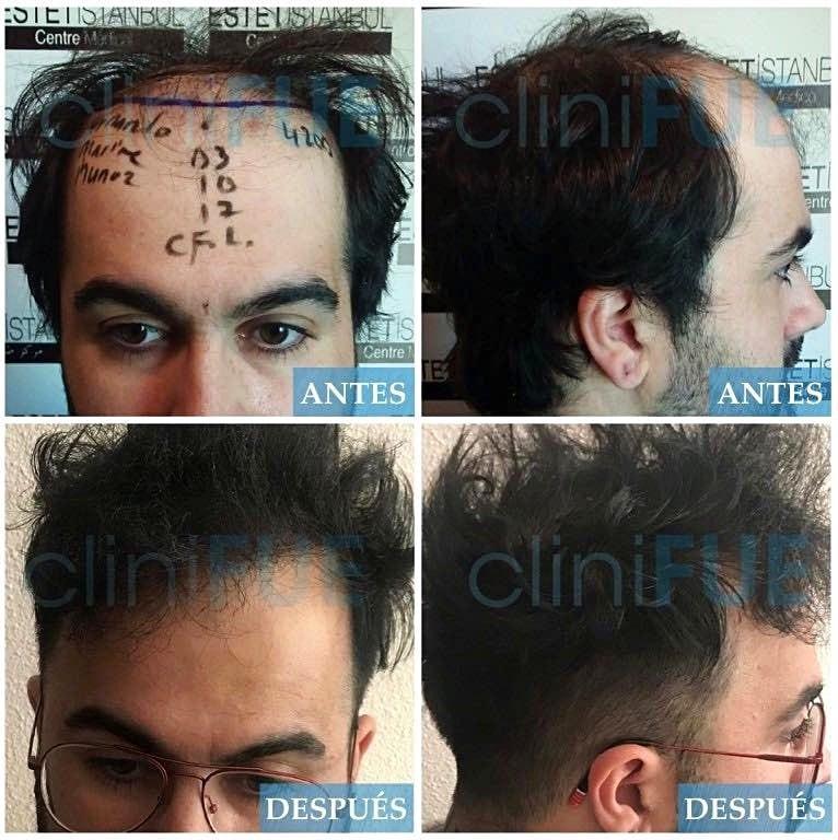 Fernando 33 Palencia 4500UF injerto de pelo