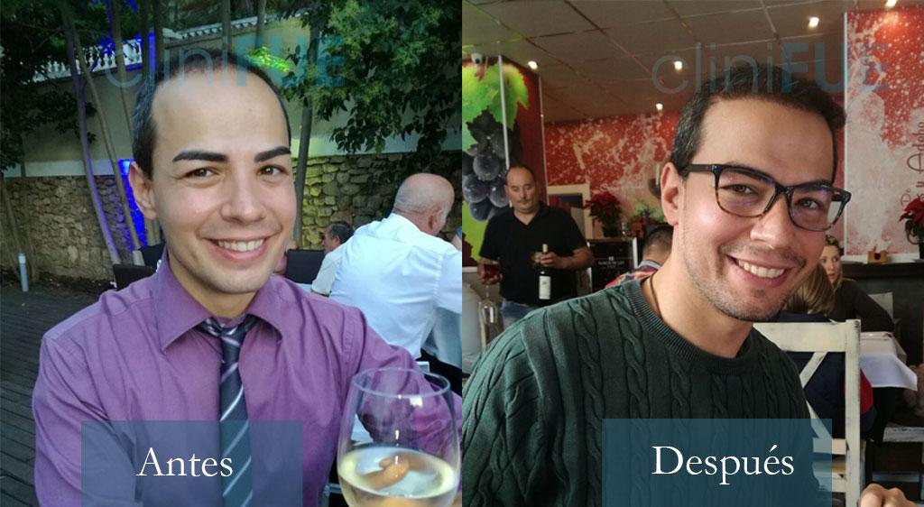 Javier 33 años Elche trasplante capilar Turquía 4.000 unidades foliculares
