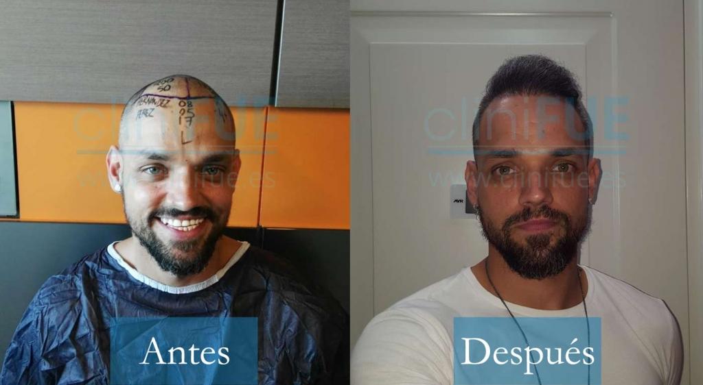 Jonay 31 Tenerife 4000UF injerto de pelo