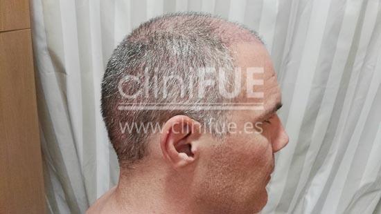 Jorge Aurelio 39 Murcia trasplante capilar turquia 15 dias