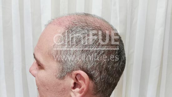 Jorge Aurelio 39 Murcia trasplante capilar turquia 1 mes