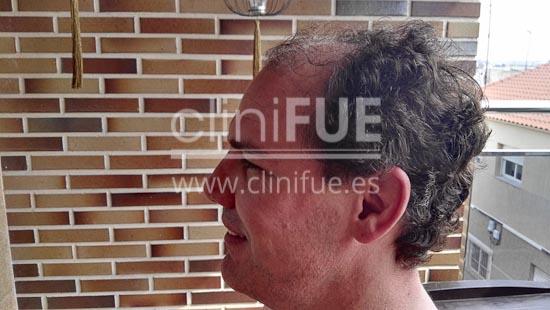 Jorge Aurelio 39 Murcia trasplante capilar turquia Antes
