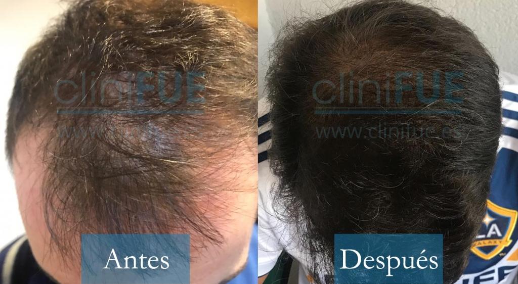 José Iñaki 34 Alicante 3500 UF injerto de pelo