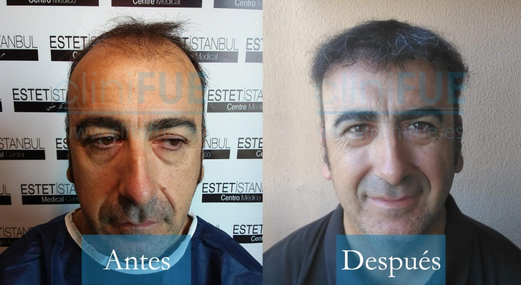 Jose Javier 47 años Sevilla 3.600 UF trasplante capilar