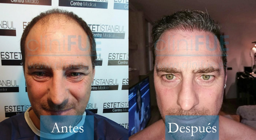 Jose Luis 42 Barcelona 4000UF injerto capilar femenino