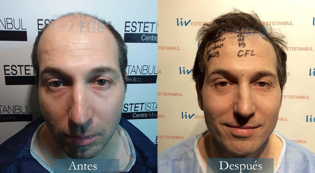 Juan Antonio 36 años Mallorca 3500 + 2500 UF injerto capilar