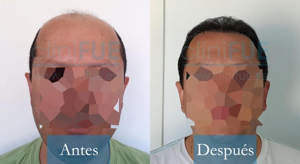 Luciano 44 4300 UF trasplante capilar