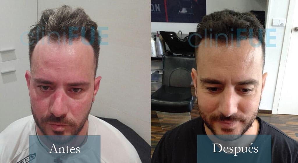 Manuel 35 años Toledo 3200 UF injerto capilar