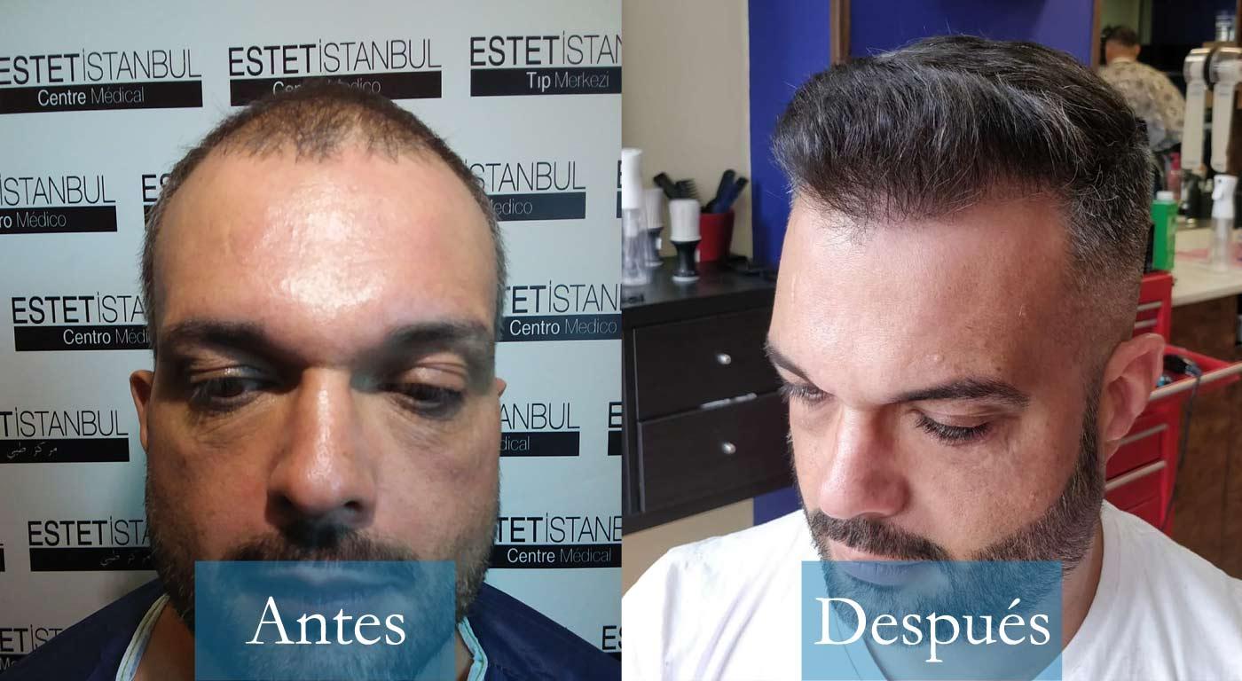 Roberto 40 Gran Canaria _antes y despues trasplante capilar con cliniFUE