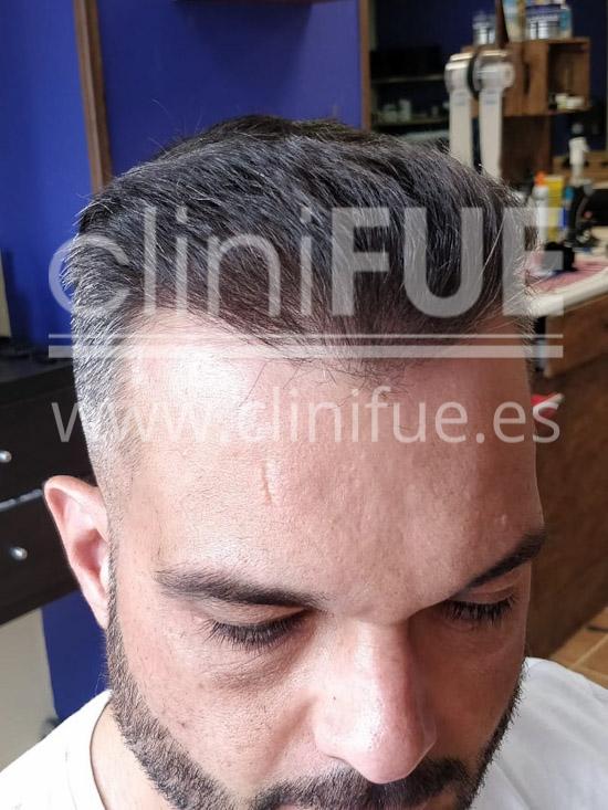 Roberto 40 Gran Canaria trasplante capilar turquia 7 meses