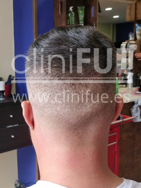 Roberto 40 Gran Canaria trasplante capilar turquia Antes
